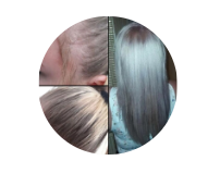 Kossalin Šampon - nezeljeni efekti - rezultati